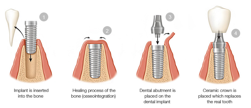Dental-implants-prime-choice-dental-cheltenham-pa