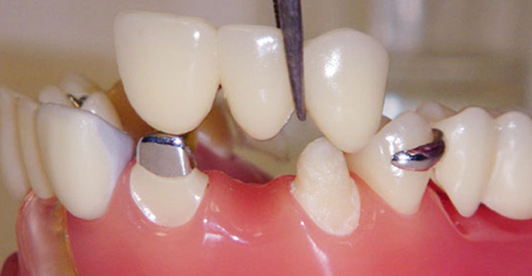 crown-bridges-prime-choice-dental-philadelphia
