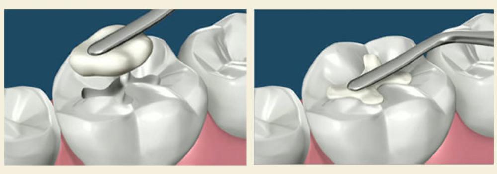 dental-filling-prime-choice-dental-cheltenham-pa