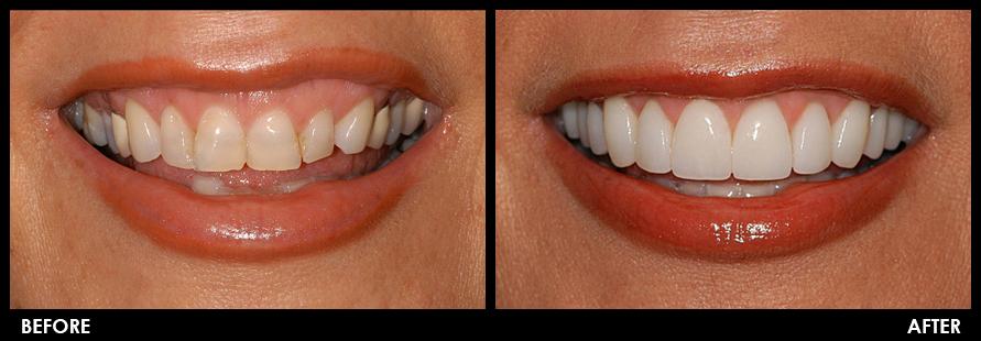 prime-choice-dental-before-after-veneers