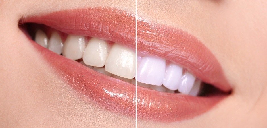 teeth-whitening-prime-choice-dental